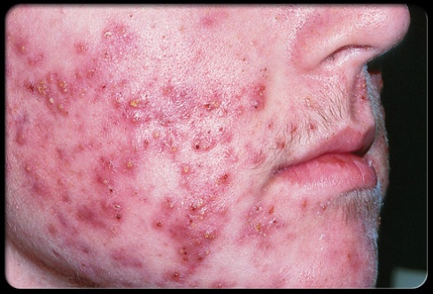 real person with real cystic acne